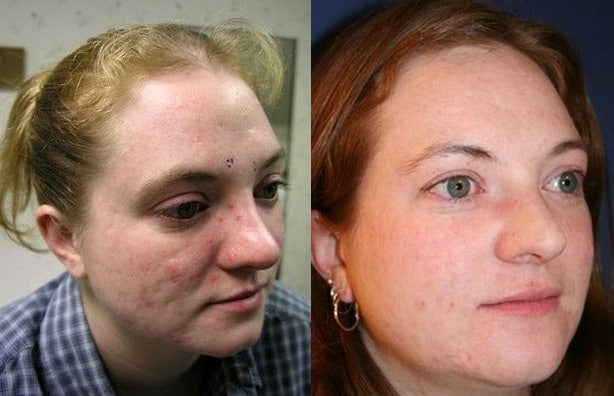 acne improvement