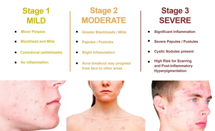 acne severity